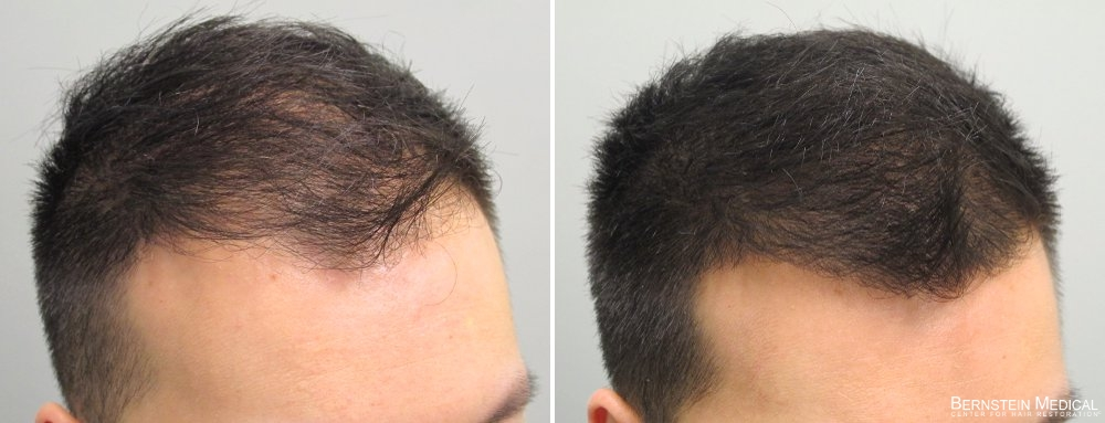 What Is DHT Hair Loss And How To Treat It