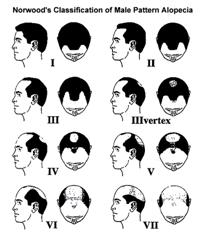 Norwood Classification of Hair Loss in Men Click for larger version
